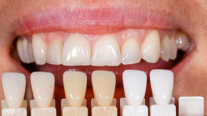teeth-whitening-myths