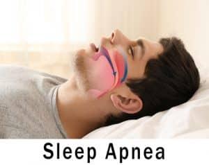 FAQs About Treating Sleep Apnea | Shrewsbury, MA